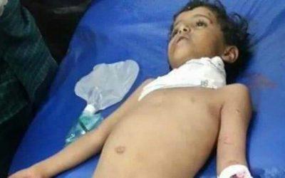 استشهاد طفل جراء قصف حوثي بالدبابات في حجر شمال الضالع