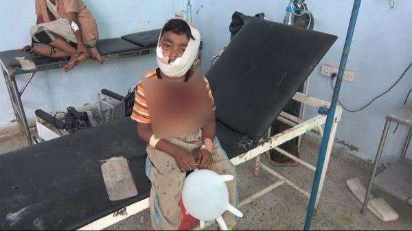 العميد طارق يتكفل بعلاج طفل من حيس أصيب برصاصة قناص حوثي